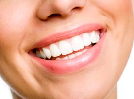 smiled review   dental hygiene london   high gloss diamond tooth polish